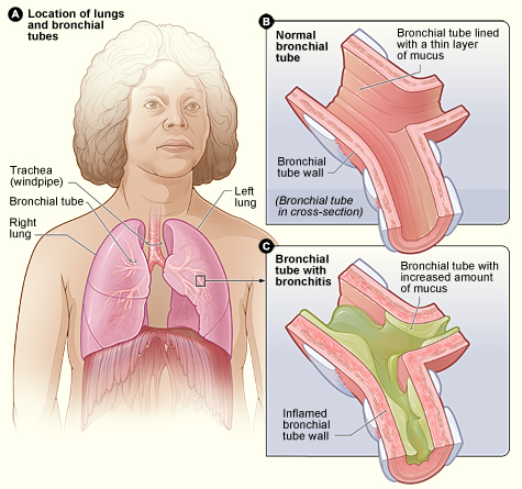 Bronchitis Explained