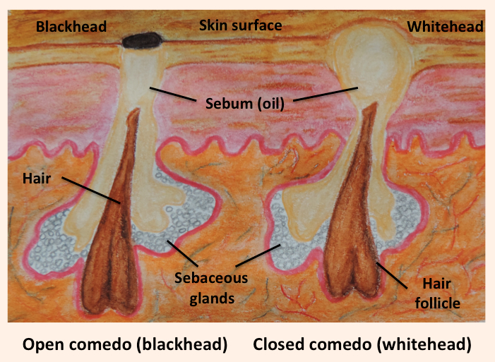 What are Blackheads – Open Comedones