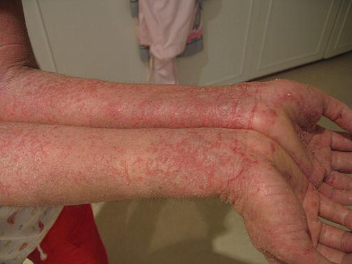 What is Eczema – Eczema Explained